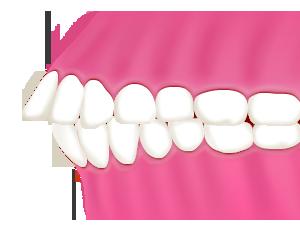 出っ歯(上顎前突/じょうがくぜんとつ)