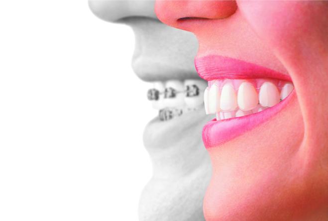 目立たない装置で歯並びをきれいに
