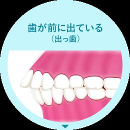 歯が前に出ている(出っ歯)