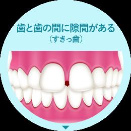 歯と歯の間に隙間がある(すきっ歯)