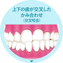 上下の歯が交叉したかみ合わせ(交叉咬合)